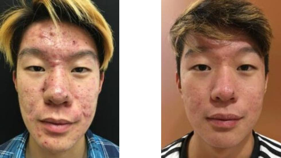 Are you frustrated with your persistent, untreatable acne?