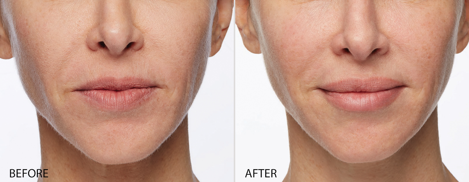 Lip Fillers…Are they really worth the hype?